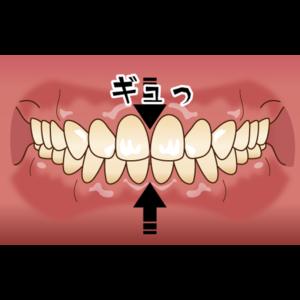マウスピース | 川口 新井宿駅前 アスター歯科