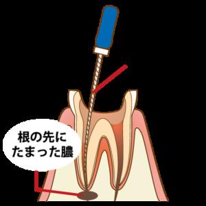 根管治療 | 川口 新井宿駅前 アスター歯科