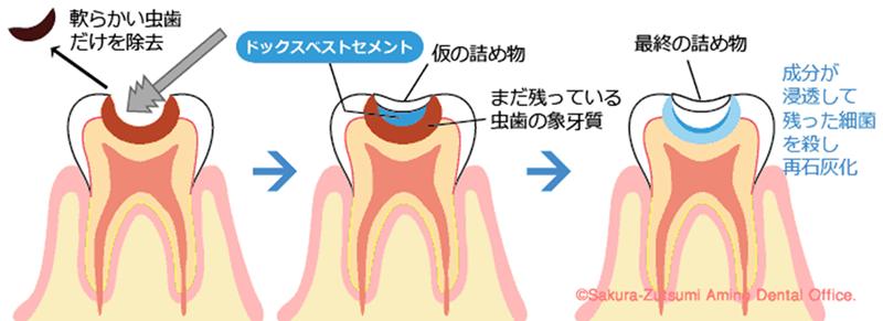 歯髄保存治療 | 川口 新井宿駅前 アスター歯科