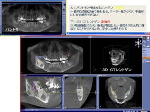 CT画像診断 | 川口 新井宿駅前 アスター歯科