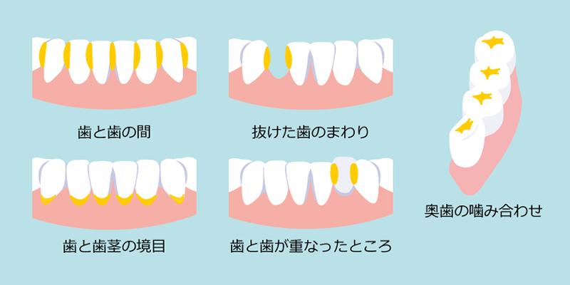 歯石除去・歯周病予防 | 川口 新井宿駅前 アスター歯科