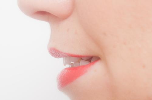 CAD/CAM | 北区 十条 マルシェ歯科