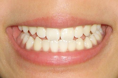 咬み合わせ補綴治療 | 北区 十条 マルシェ歯科