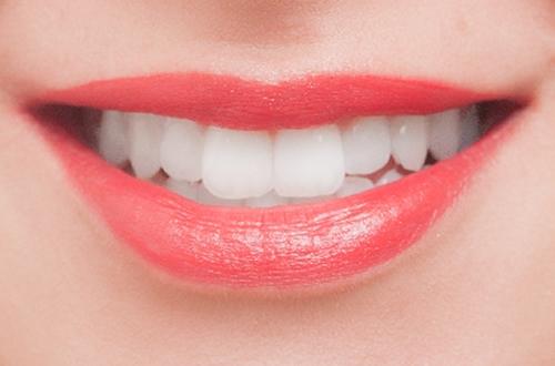 審美歯科 | 北区 十条 マルシェ歯科