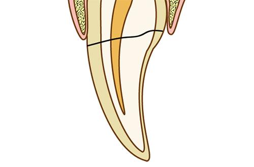 破折歯保存療法| 北区 十条 マルシェ歯科