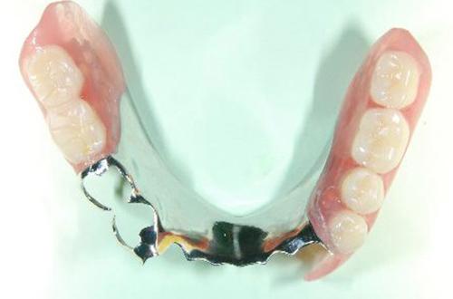 入れ歯 痛くない入れ歯 | 北区 十条 マルシェ歯科