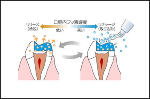 使うだけで虫歯予防の新素剤 | 北区 十条 マルシェ歯科